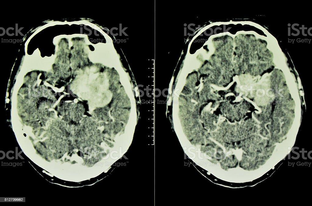 Brain tumor, meningioma, CT stock photo