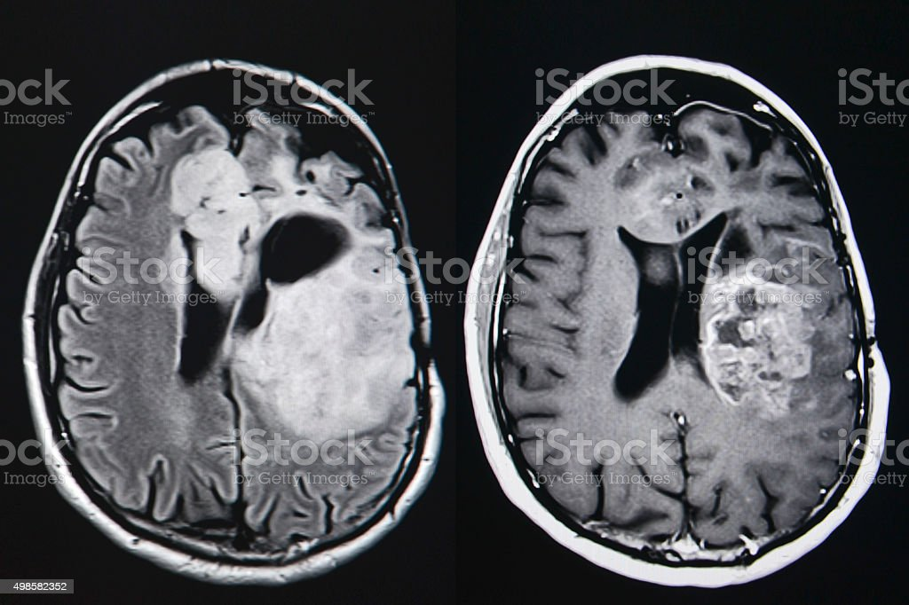 Brain tumor, MRI stock photo