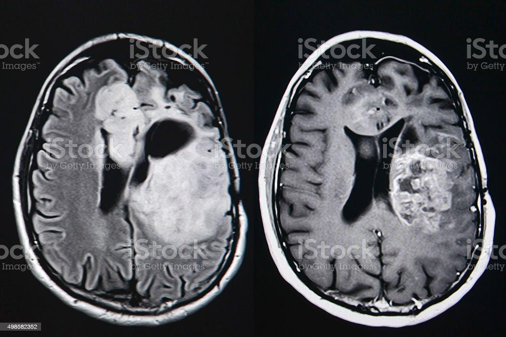 Brain tumor, MRI stock photo