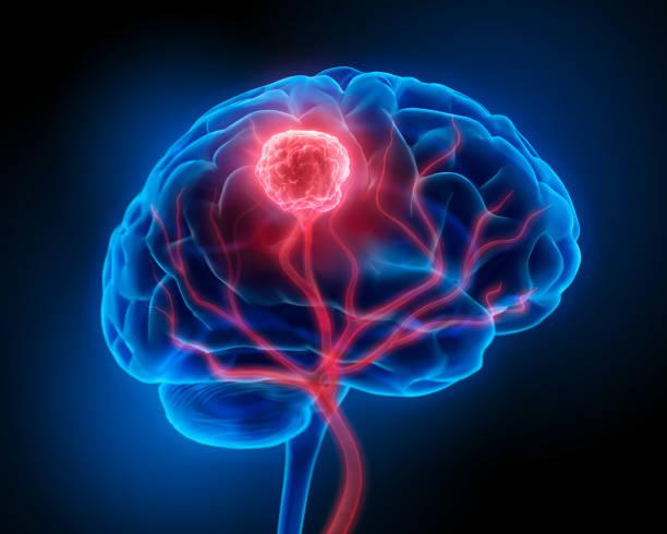 Brain Tumor stock photo