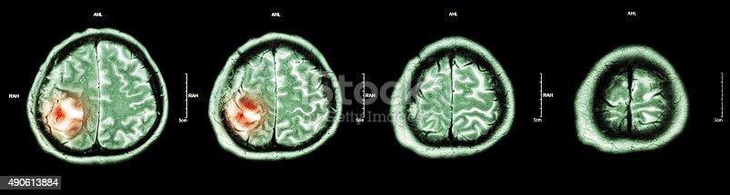 istock Brain tumor 490613884