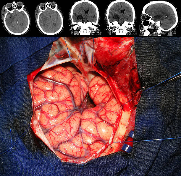 Brain tumor surgery stock photo