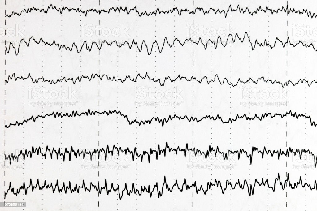Brain wave patterns on electroencephalogram, EEG of the pediatric patients, problems in the electrical activity of the brain. stock photo