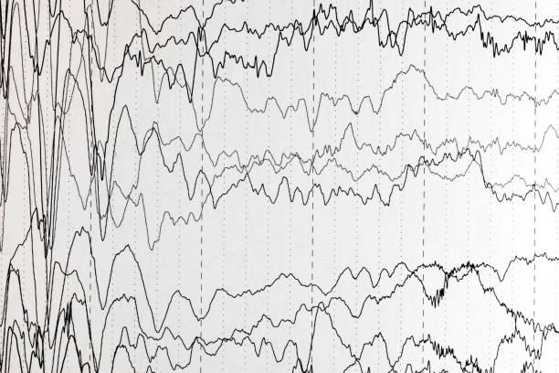 Padrões de ondas cerebrais no eletroencefalograma, EEG de pacientes pediátricos, problemas da atividade elétrica do cérebro. - foto de acervo