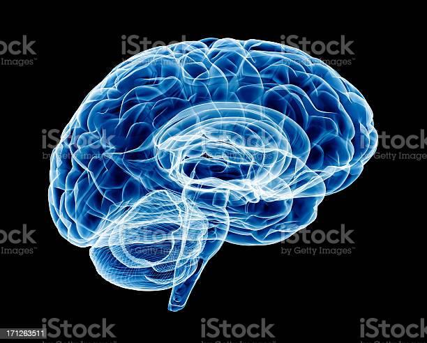 Brain xray picture id171263511?b=1&k=6&m=171263511&s=612x612&h=h2sne70f qmg  uyjwrmdewzwtkxtthj5dozxene1ws=