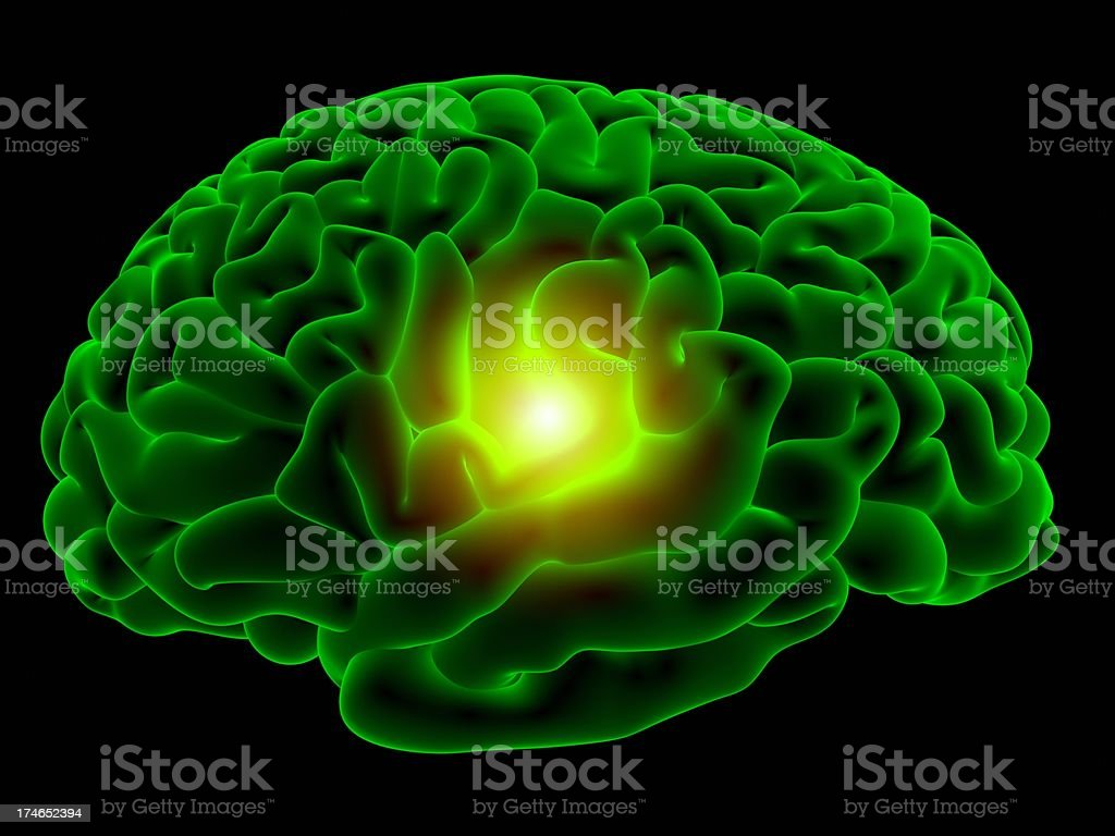 Brain x-ray royalty-free stock photo