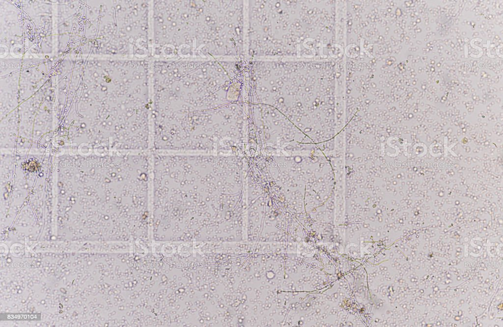Branching budding yeast cells with pseudohyphae in stock photo