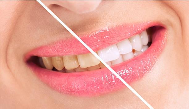 Breaching teatment, woman perfect whiten teeth stock photo