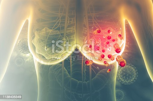 istock Breast cancer. 3d illustration 1138405349
