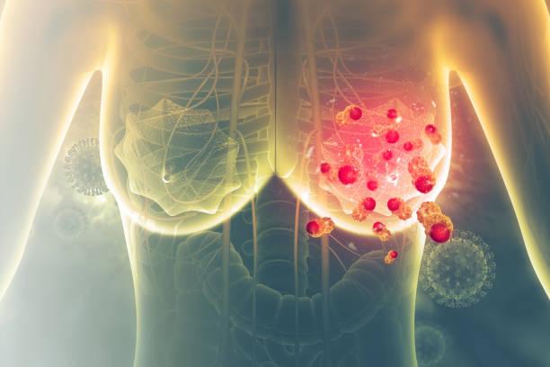 borstkanker. 3d illustratie - breast cancer stockfoto's en -beelden