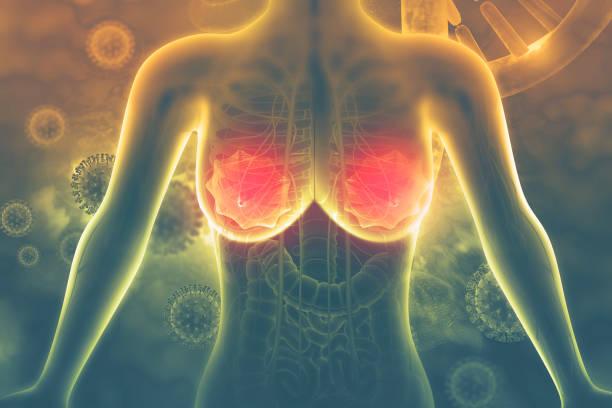brustkrebs. 3d-illustration - symptome brustkrebs stock-fotos und bilder