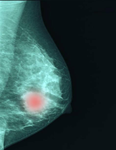 breast cancer  breaststroke - breast cancer awareness стоковые фото и изображения