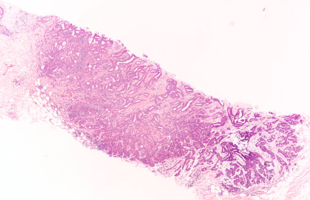 Breast Cancer Core Biopsy stock photo