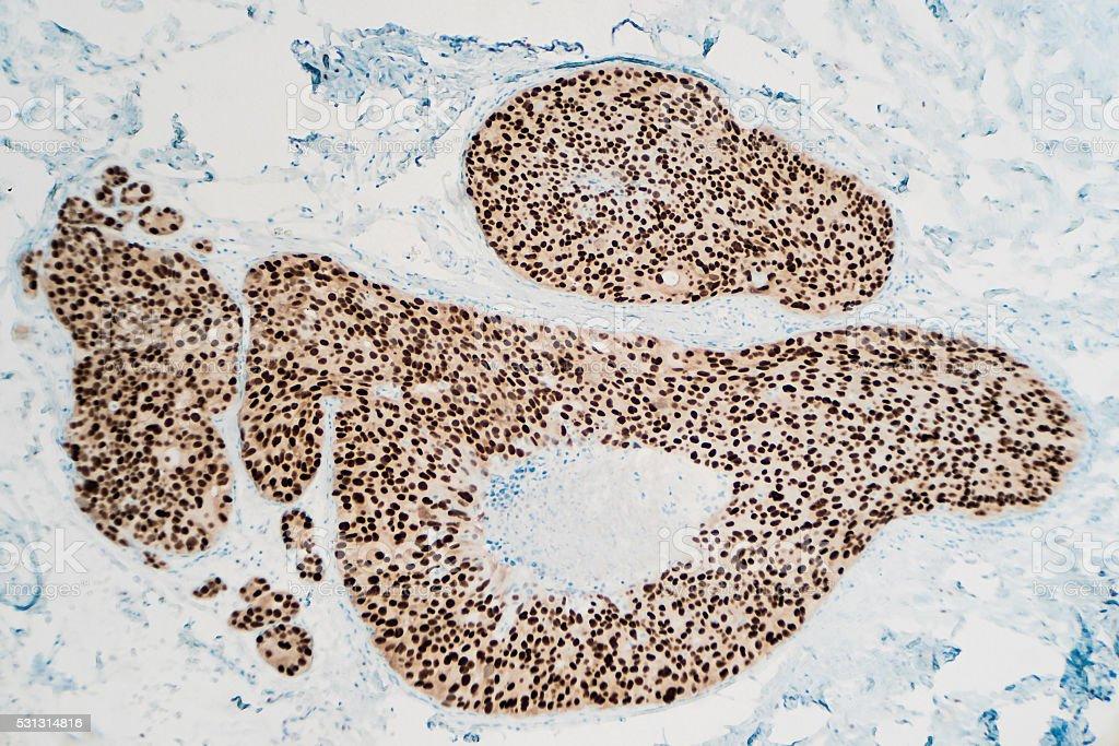 El cáncer de mama : Inmunohistoquímica (Immunohistochemistry) - foto de stock