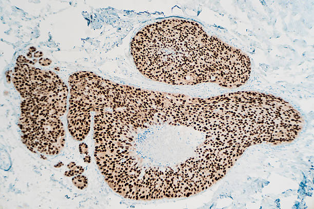 Breast Cancer: Immunohistochemistry Breast cancer, ductal carcinoma in situ (DCIS): Immunohistochemistry (IHC) for estrogen receptor (ER) shows positive nuclear staining (photographed and uploaded by certified US surgical pathologist). oestrogen stock pictures, royalty-free photos & images