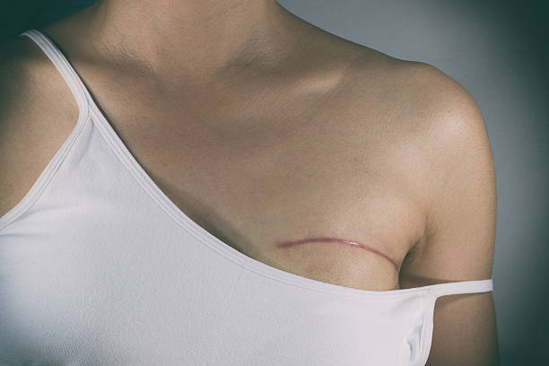 Breast cancer surgery scars Breast cancer surgery scars by partial mastectomy. With effect filter. scar stock pictures, royalty-free photos & images