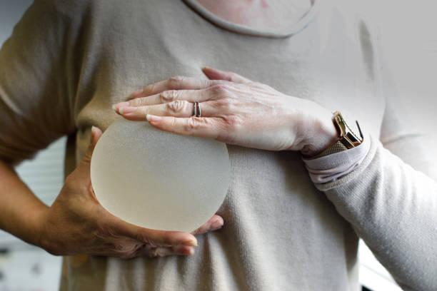 Brustimplantat – Foto
