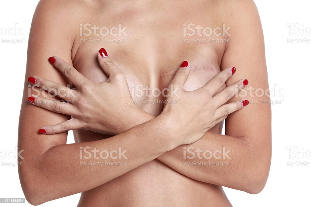 Breast reconstruction after cancer royalty-free stock photo