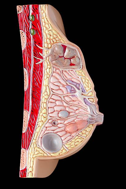 Peito com pathologies - foto de acervo