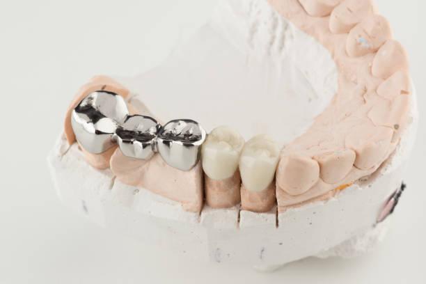 Bridged dental prostheses – zdjęcie