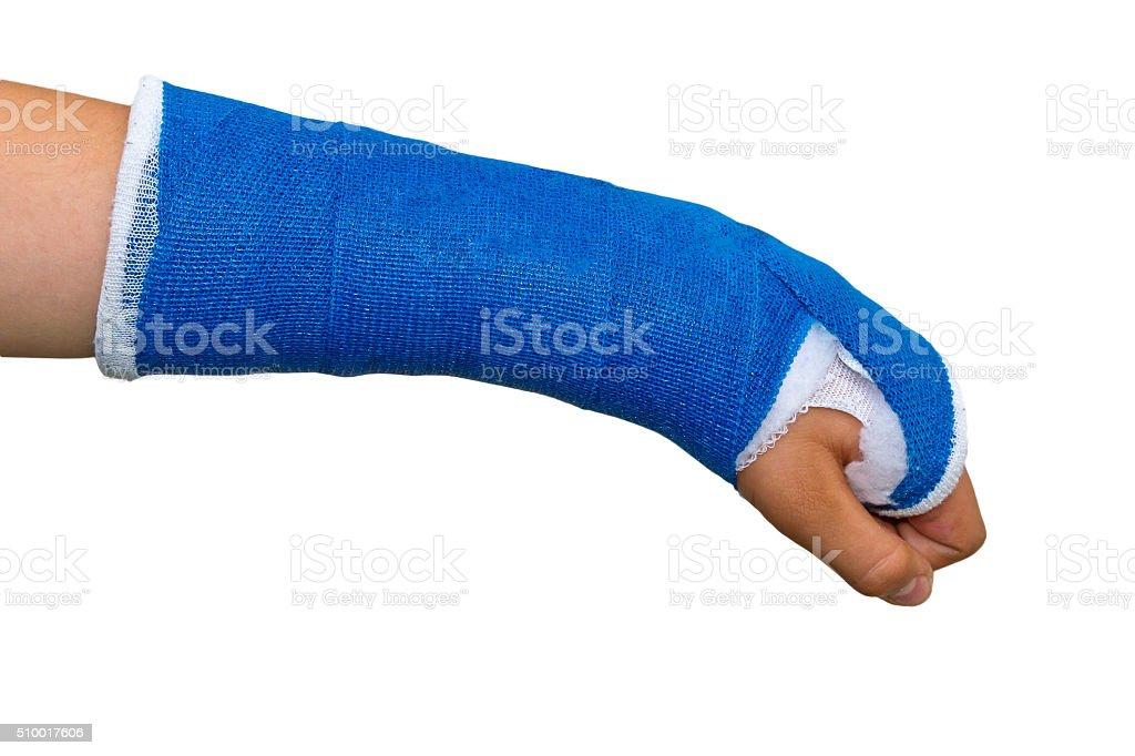Gebrochener Arm in eine blaue Gipsverband – Foto