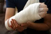 Broken arm in a white cast wrap