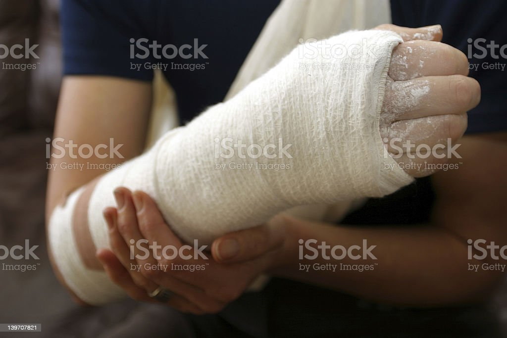 Broken arm in a white cast wrap stock photo