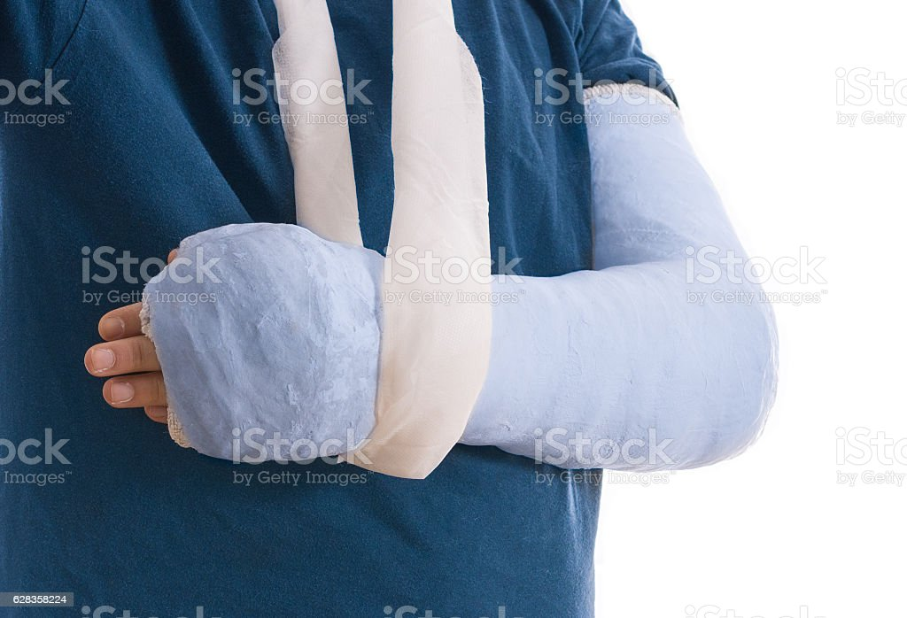 Broken arm in blue plaster cast and sling stock photo
