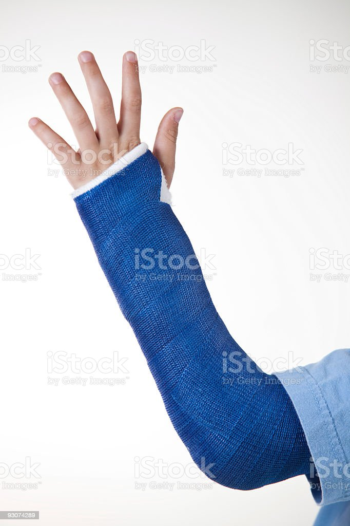 Broken Arm in Cast royalty-free stock photo