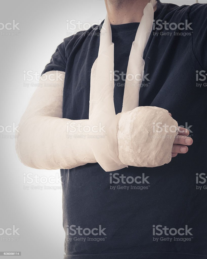Broken arm in white plaster cast and sling stock photo