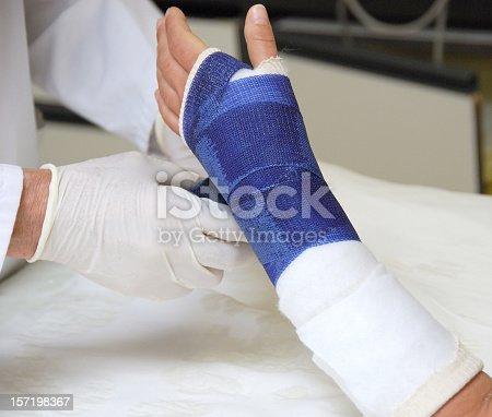istock Broken arm 157198367