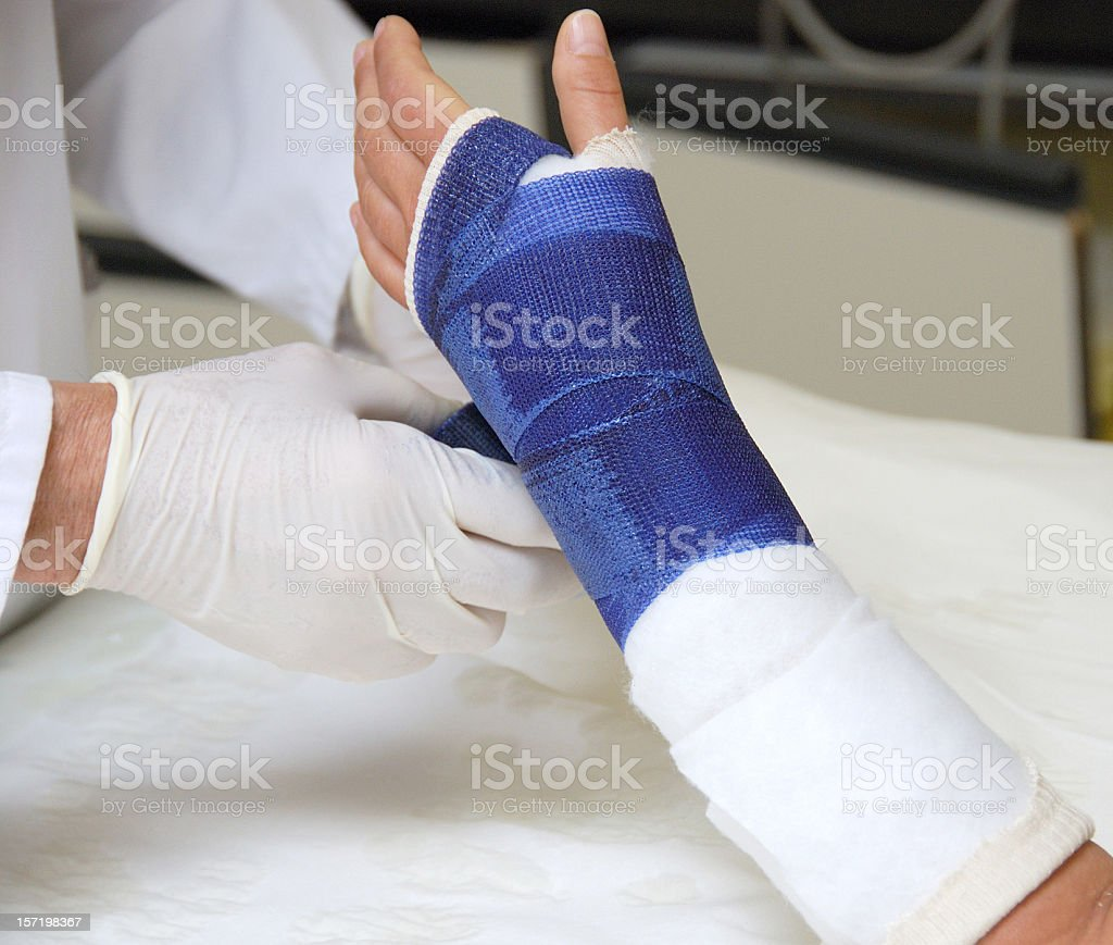 Broken arm stock photo