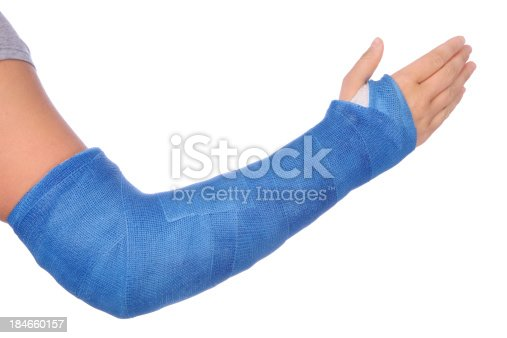 Broken arm with a blue fiberglass cast on a white background.PLEASE CLICK ON THE IMAGE BELOW TO SEE MY MEDICAL TECHNOLOGY LIGHTBOX: