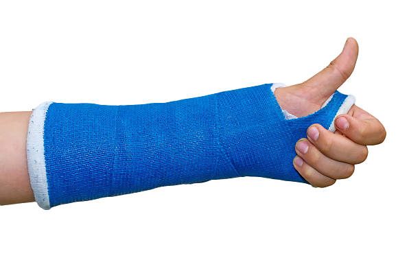 broken arm -  thumb up - gips bouwmateriaal stockfoto's en -beelden