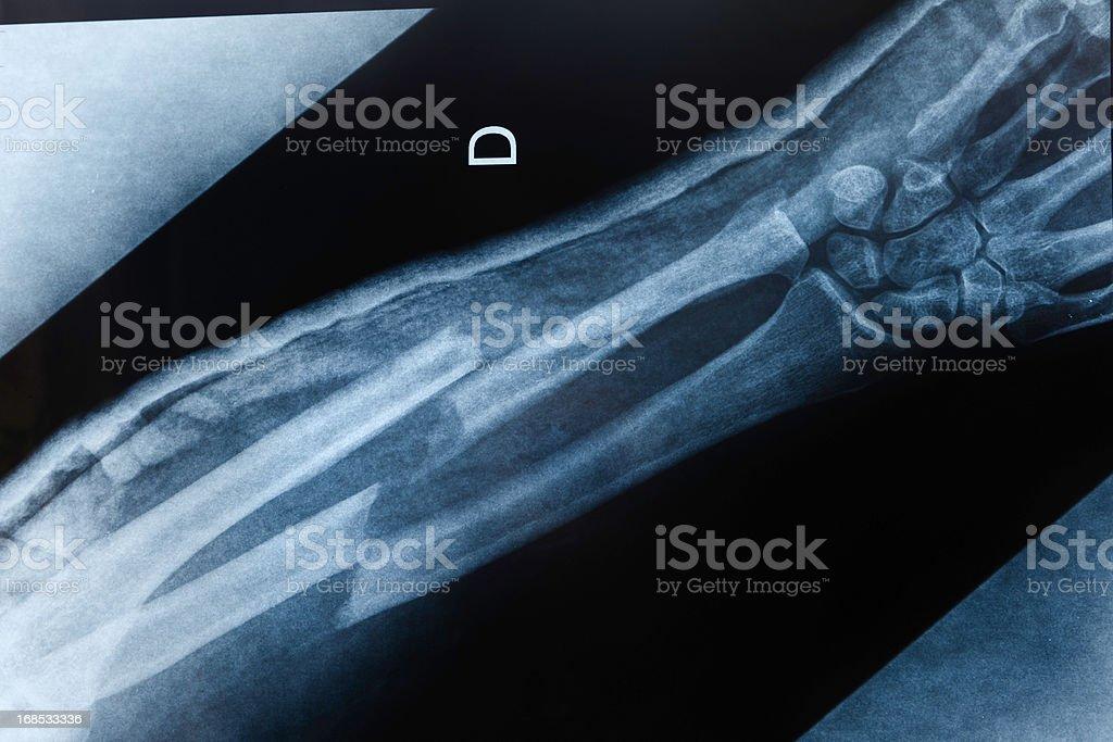 Gebrochener Arm Xray Stock-Fotografie und mehr Bilder von Anatomie ...