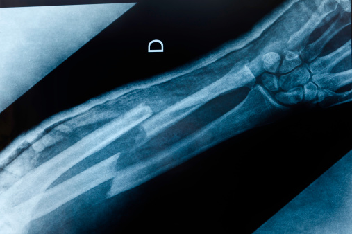 An x-ray image of an boken arm with double fracture: radius and ulna.