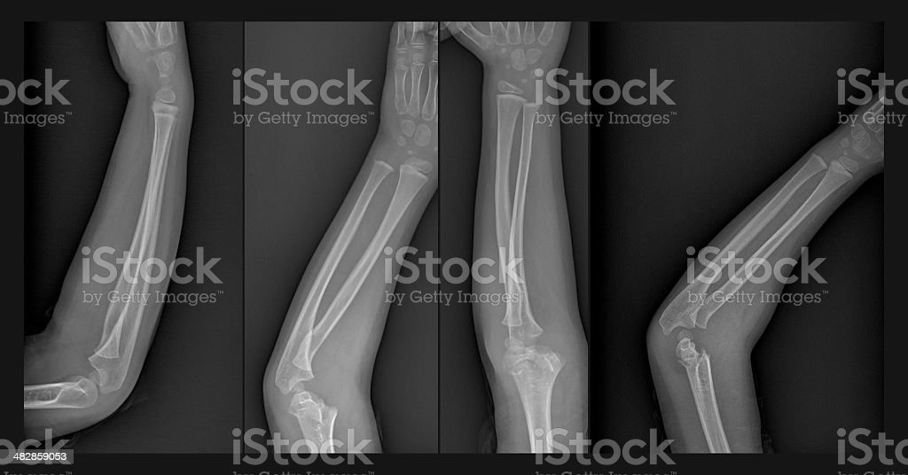 Broken arm xray stock photo