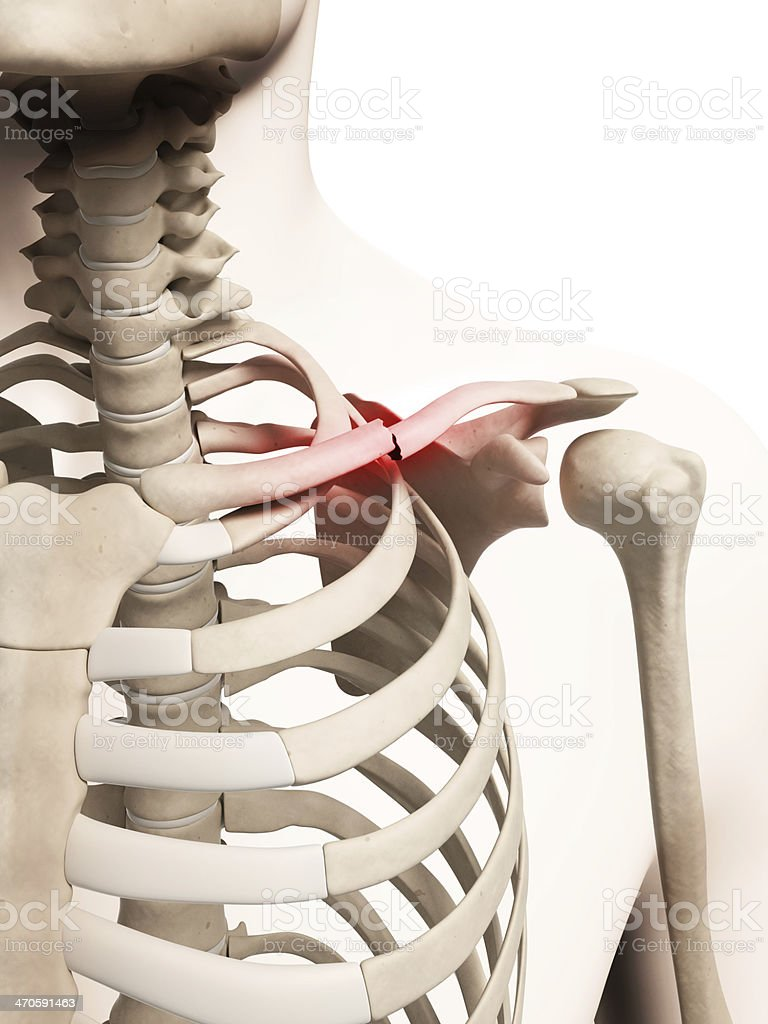 broken clavicle stock photo