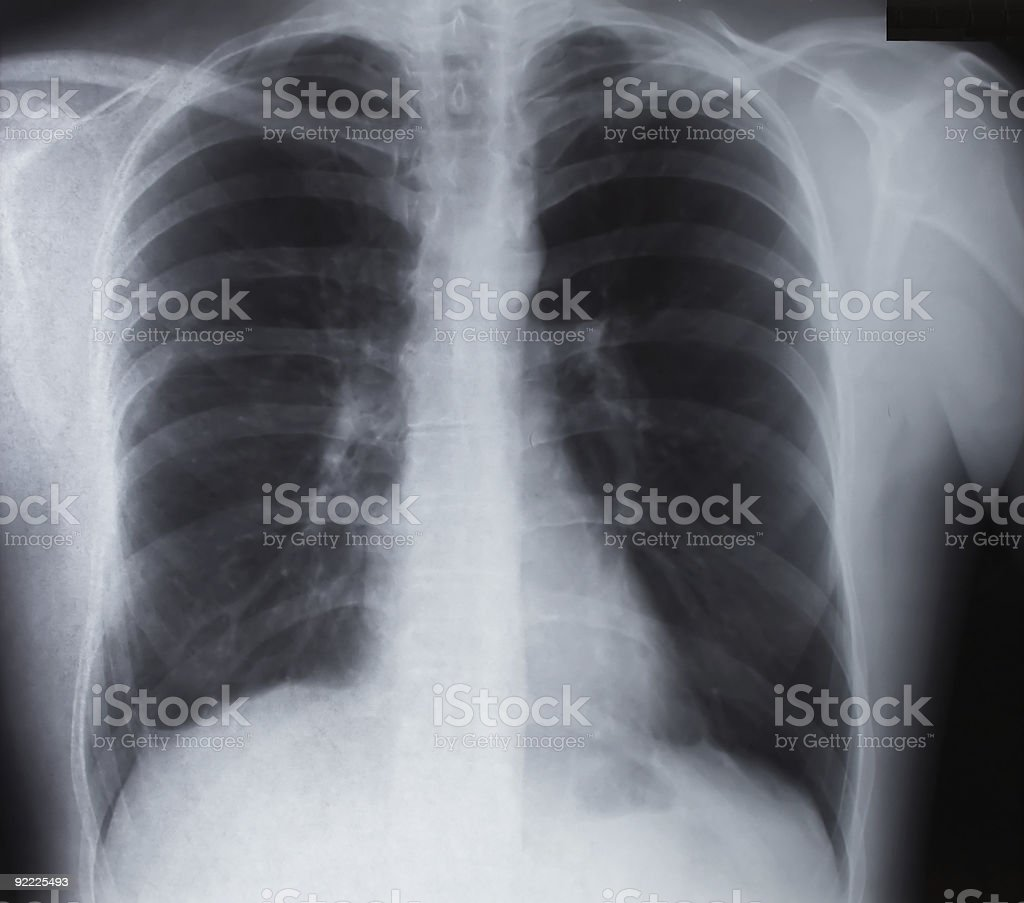 Broken Clavicle X-Ray stock photo