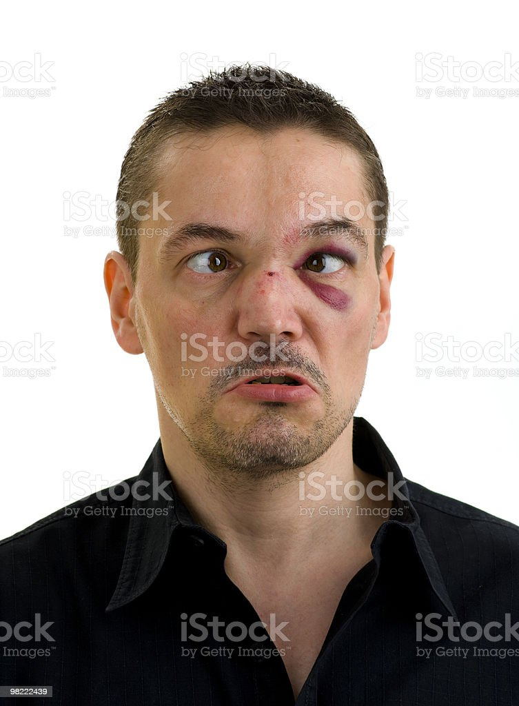 broken, crooked nose and black, crossed eyes royalty-free stock photo