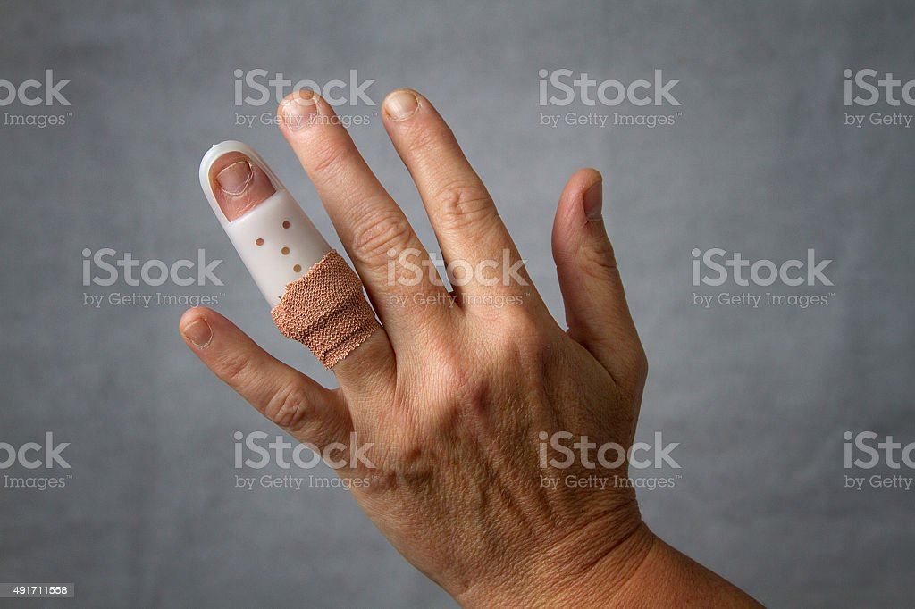 Broken finger stock photo