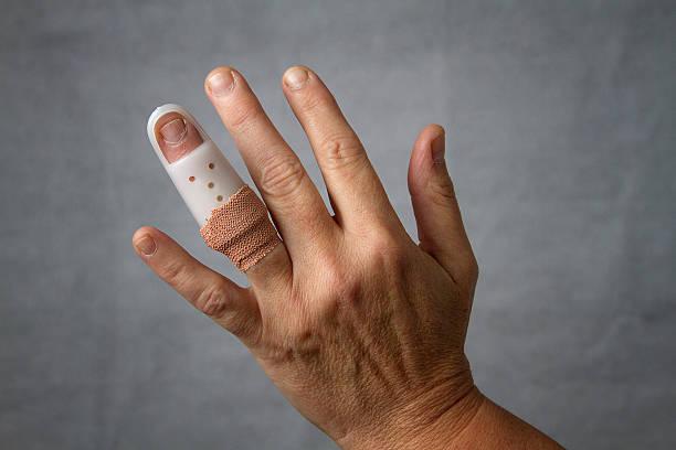 Broken finger stock photo