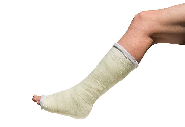 broken foot in cast isolated against white background - broken leg stock photos and pictures