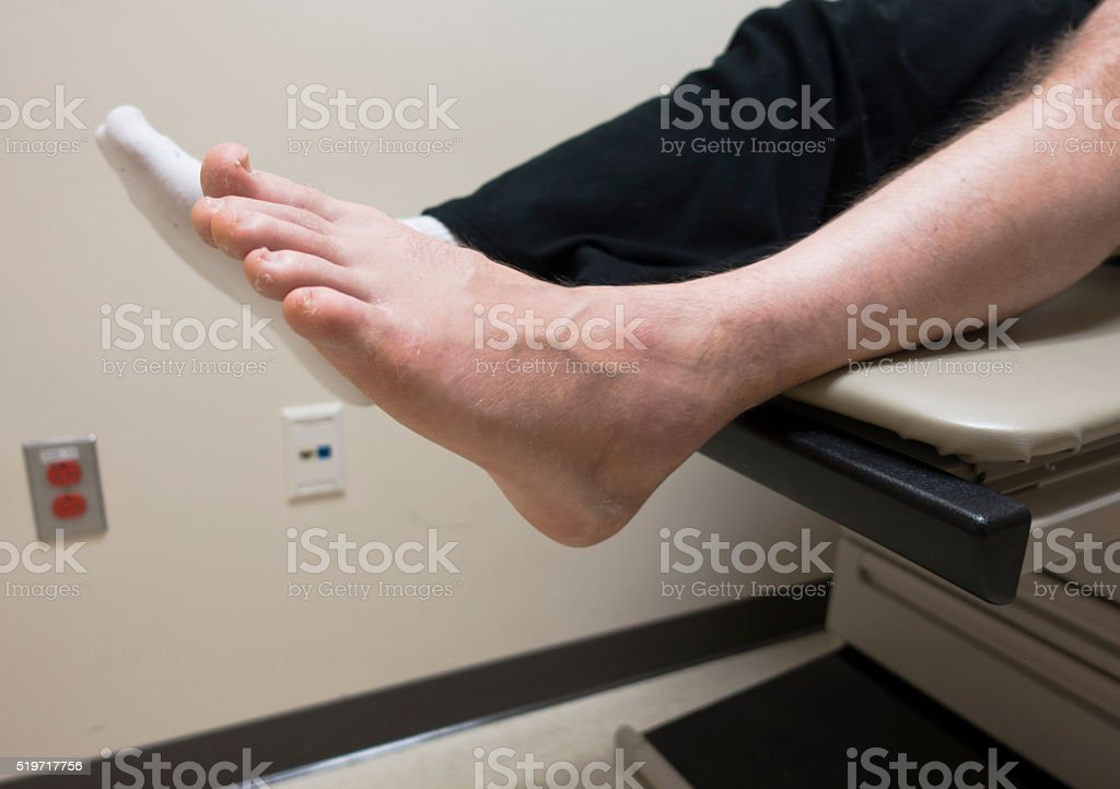 Broken Foot, Sprained Ankle, Fractured Bone in Doctor\'s Exam Room