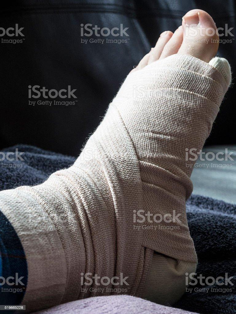 Gebrochen Mir Oder Verstaucht Fuß Und Knöchel In Gusseisen Stock
