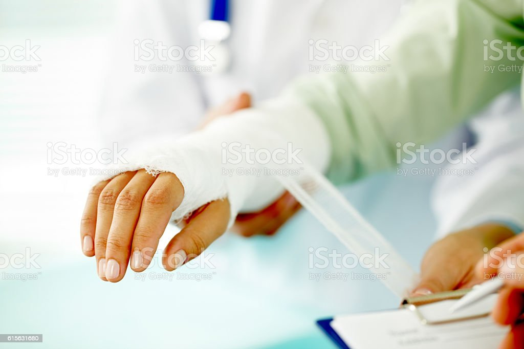 Broken hand stock photo