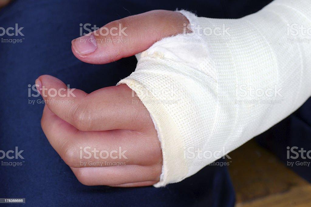 Broken Hand Mit Gips Gipsverband Nahaufnahme Stockfoto Und Mehr