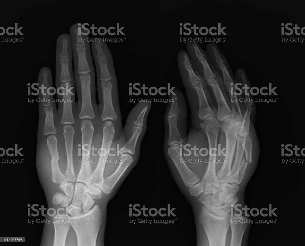 ฺbroken Hand Xray Image Stock Photo & More Pictures of Anatomy | iStock