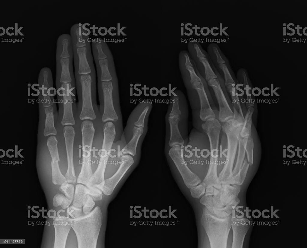 ฺbroken Hand Xray Image Stock Photo & More Pictures of Anatomy   iStock