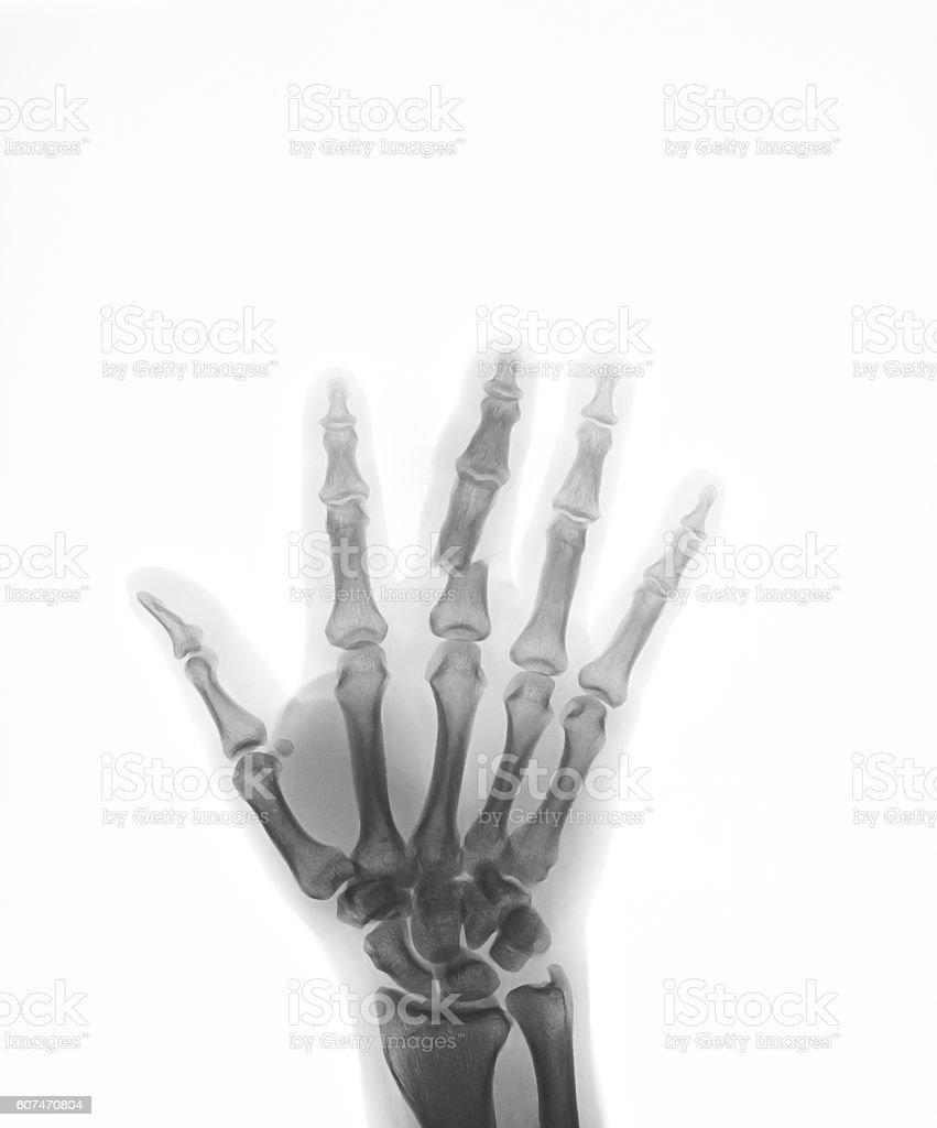 Charmant Handwurzelknochen X Ray Anatomie Fotos - Menschliche ...